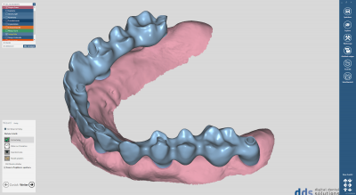 dds dentalCAD, implant lab bundle, flexible Lizenz