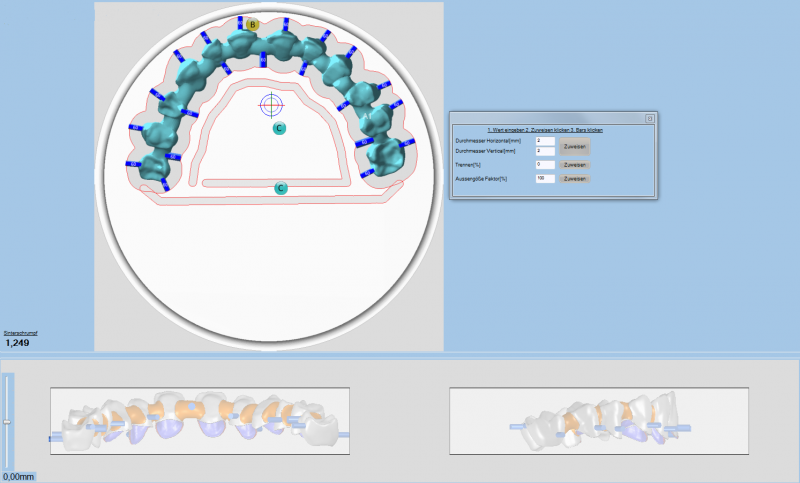 https://www.digital-dental-solutions.com/media/image/d7/31/a9/Bild-2_ddsCAM.png