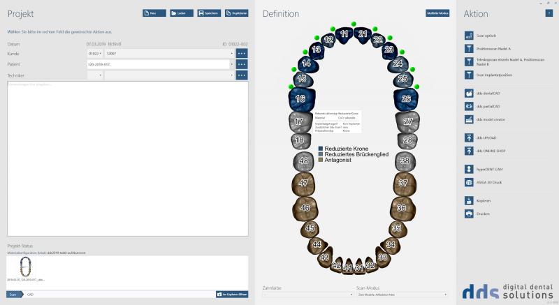 https://www.digital-dental-solutions.com/media/image/53/f0/5a/Bild-5_CAD-Software.png