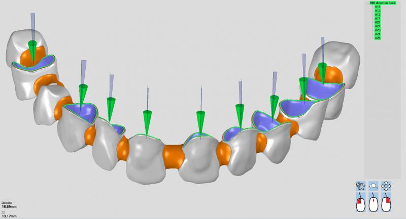 https://www.digital-dental-solutions.com/media/image/44/38/7b/Bild-1_ddsCAM.png