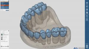 dds dentalCAD ultimate lab bundle, permanente Lizenz