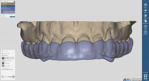 dds dentalCAD bite splint module