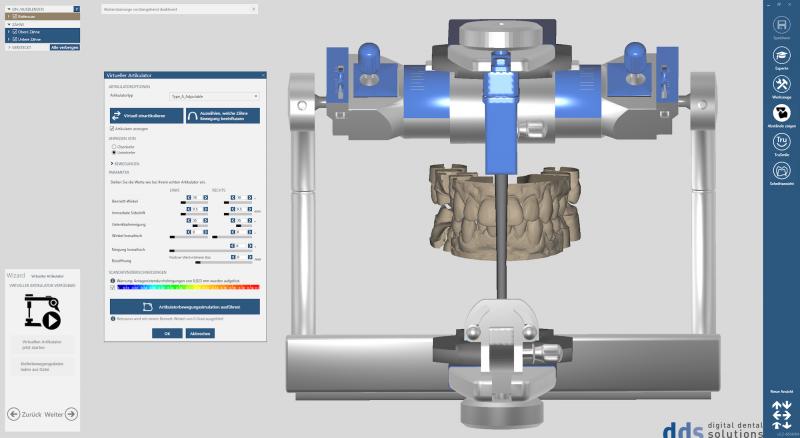 https://www.digital-dental-solutions.com/media/image/23/60/81/Bild-9_CAD-Software.png