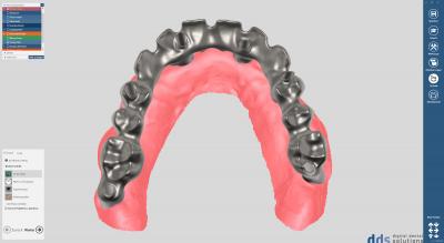 dds dentalCAD implant module