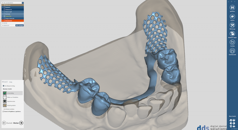 https://www.digital-dental-solutions.com/media/image/8d/8c/b6/Bild-14_CAD-Software.png