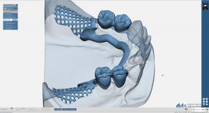 dds dentalCAD partialCAD module