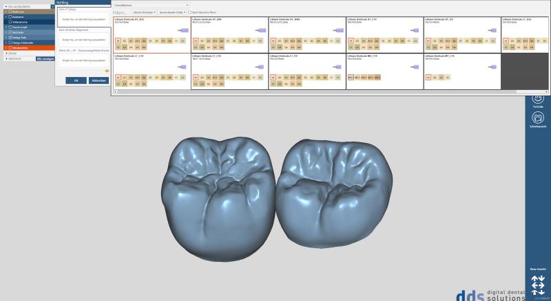 https://www.digital-dental-solutions.com/media/image/72/38/5c/Bild-16_CAD-Software.png
