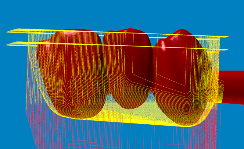 https://www.digital-dental-solutions.com/media/image/7d/6e/2b/Bild-11_hyperDENTogACDbGq8C1Bn.png