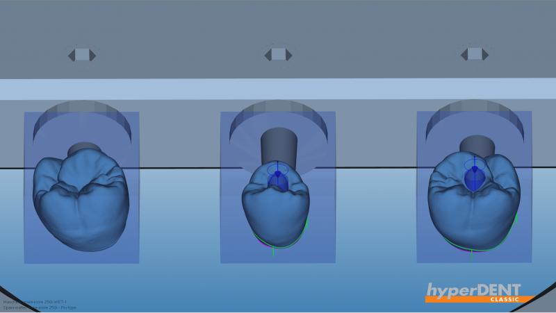 https://www.digital-dental-solutions.com/media/image/cf/07/34/Bild-7_hyperDENTPqlHtetpUw5jw.png