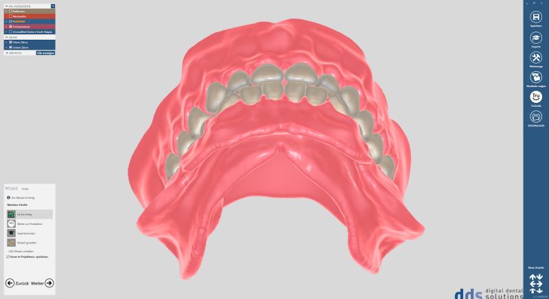 https://www.digital-dental-solutions.com/media/image/9e/c3/3f/Bild-7_CAD-Software.png