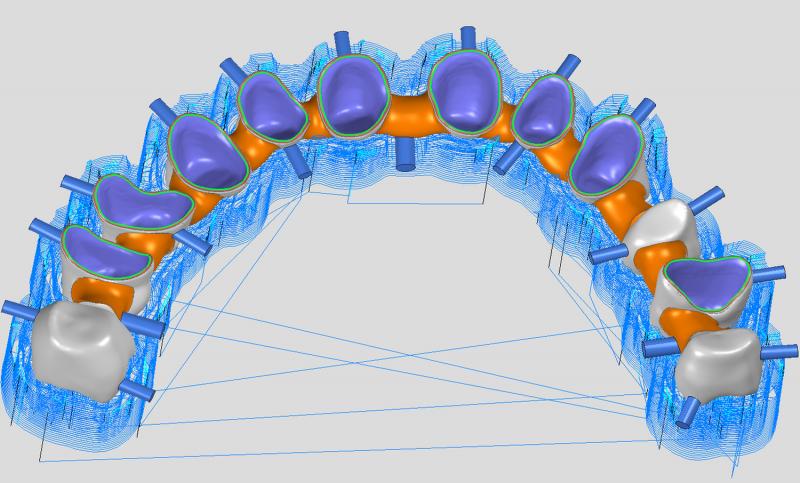 https://www.digital-dental-solutions.com/media/image/45/e9/7e/Bild-3_ddsCAM.png