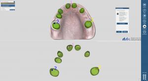 dds dentalCAD taktil core lab version, permanente Lizenz