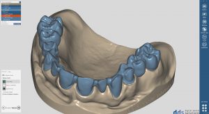 dds dentalCAD core lab version, permanente Lizenz