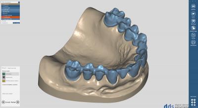 dds dentalCAD, core lab version, flexible Lizenz