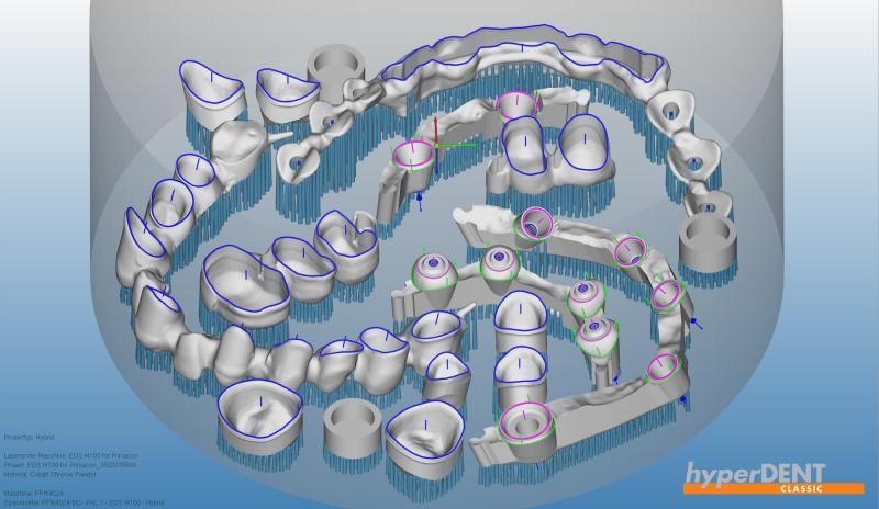 https://www.digital-dental-solutions.com/media/image/cd/5c/f3/Bild-13_hyperDENT.png