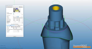 hyperDENT® interface geometry