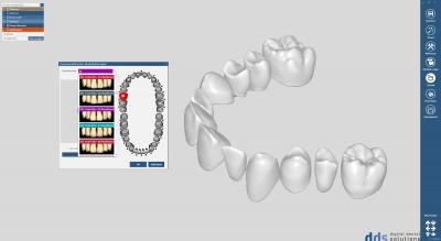 tooth library ZRS Wiedmann