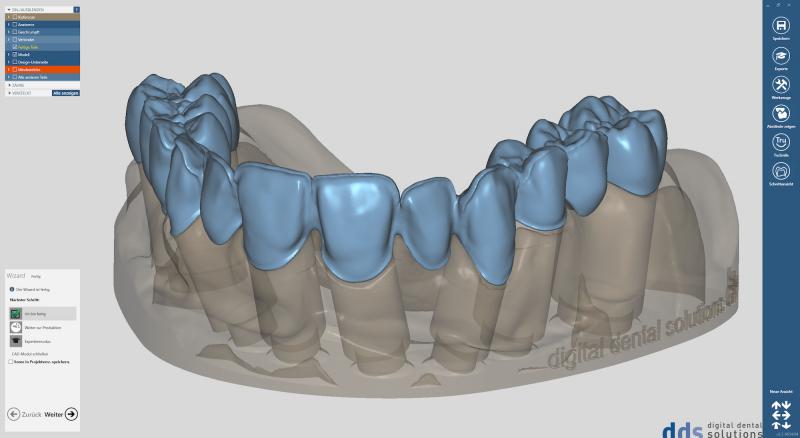 https://www.digital-dental-solutions.com/media/image/b7/3c/12/Bild-2_CAD-Software.png