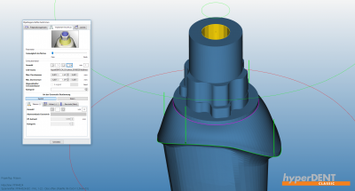 hyperDENT® interface geometry