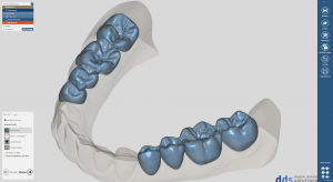 dds dentalCAD, advanced lab bundle, flexible Lizenz