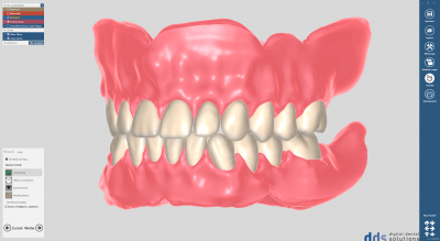 dds dentalCAD full denture module