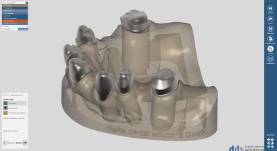 dds dentalCAD, ultimate lab bundle, flexible Lizenz