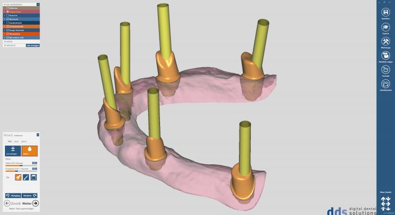 https://www.digital-dental-solutions.com/media/image/fb/5e/a6/Bild-12_CAD-Software.png