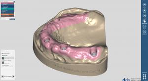 dds dentalCAD model creator module