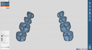 dds dentalCAD provisional module